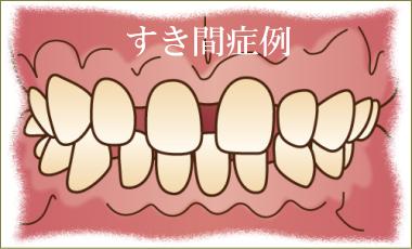 前歯のすきっ歯矯正治療解説