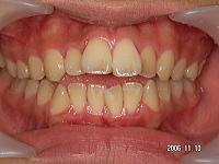 歯を抜かないで開口を治す!!症例の徹底解説